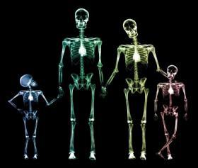 La fisétine : une alternative pour la prévention de l'ostéoporose